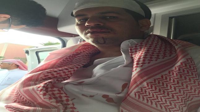 """""""جمال سنان"""" اليمني الذي اعتدى عليه الأمير السعودي يظهر في فيديو جديد يناشد الملك سلمان"""