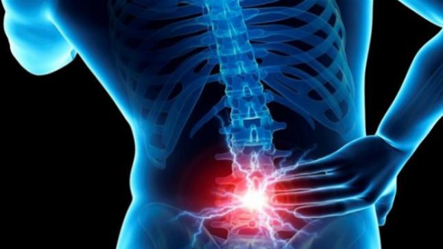 معلومات عن آلام أسفل الظهر وكيف يمكنك الشفاء منه سريعا