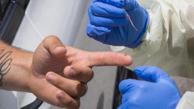 """الرجال ينتجون أجساما مضادة لـ""""كوفيد-19″ أكثر من النساء"""